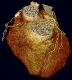 ¿Qué es la Cardiopatía isquémica? Prevención y diagnóstico mediante TAC coronario o coronariografía no invasiva
