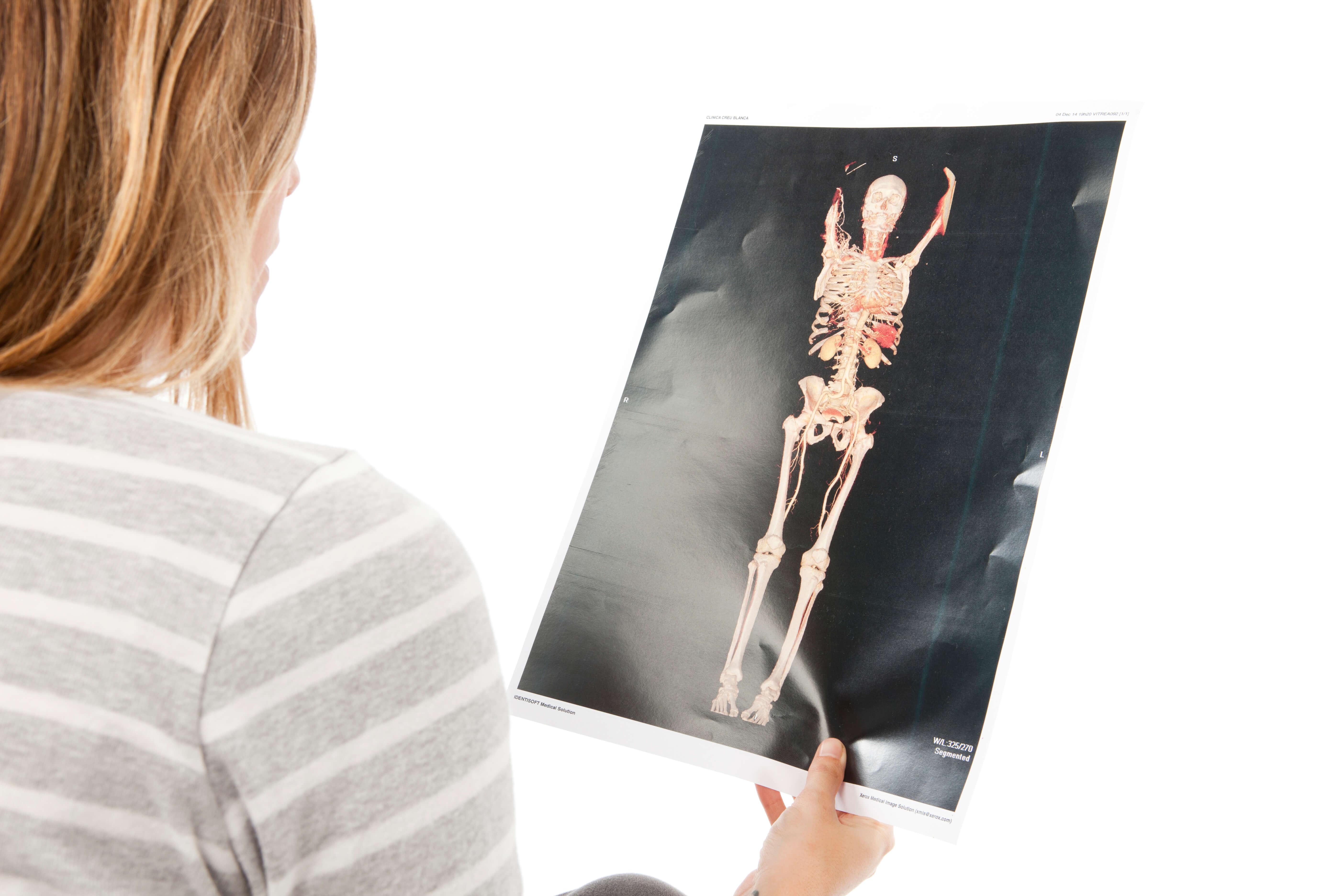 Diagnóstico precoz del cáncer con el chequeo Onco Full Body