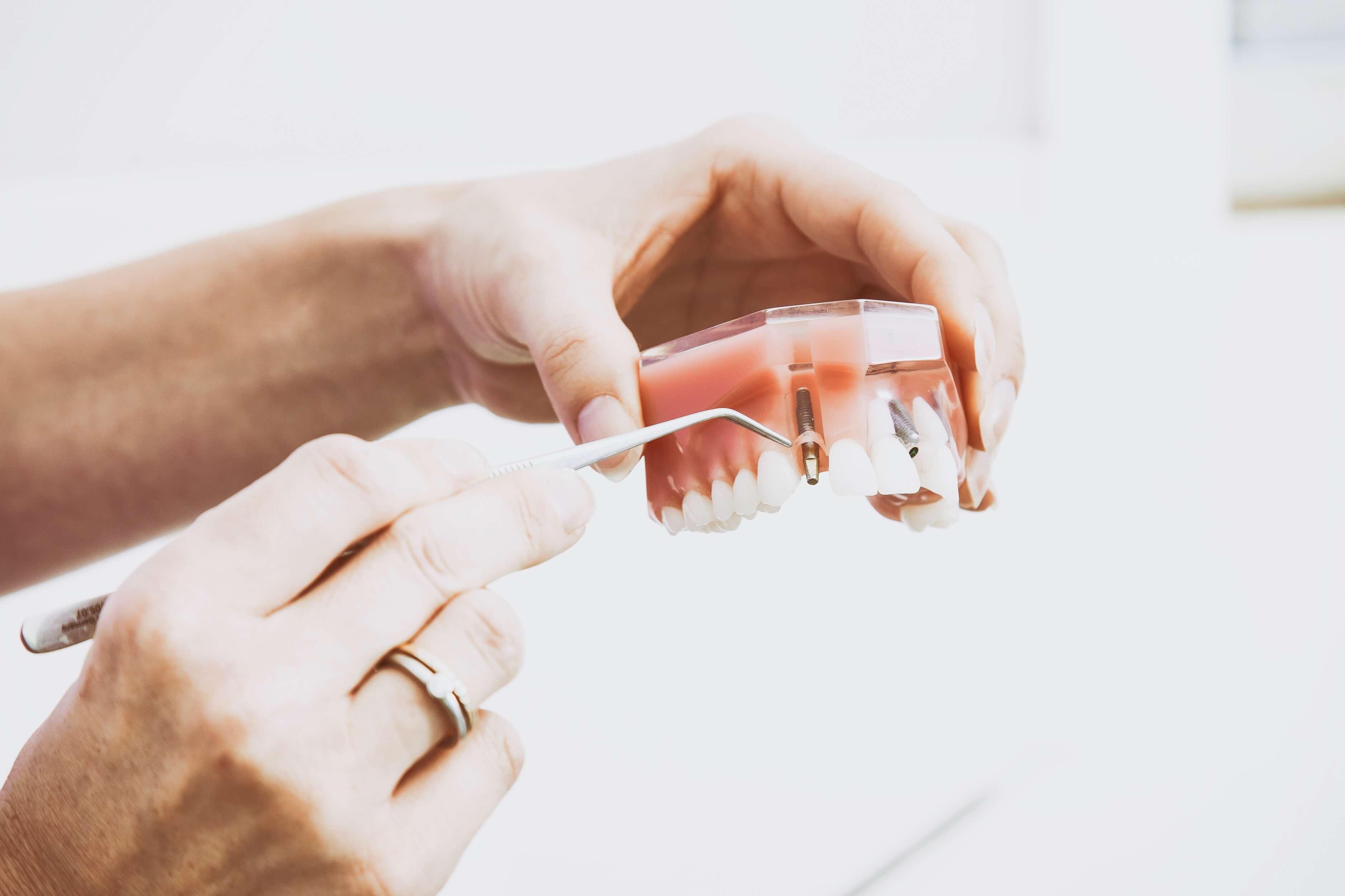 Instrucciones básicas para una buena limpieza dental
